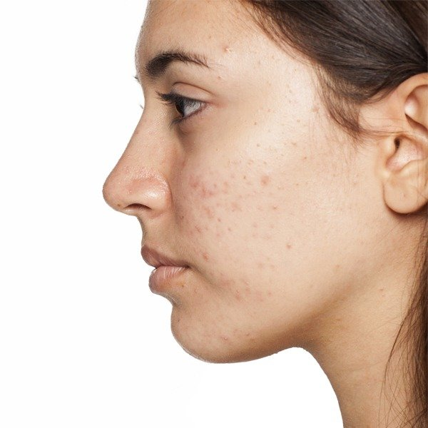 Acne Solutions for Pimples, Blackheads, & Whiteheads
