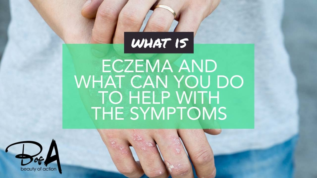 What is eczema and what can you do to help with the symptoms?