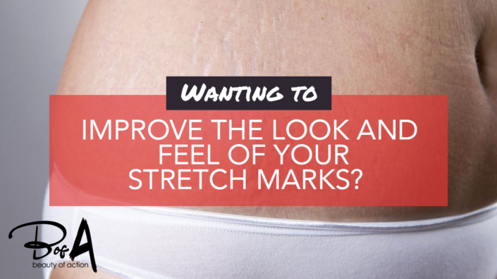 How Can I Minimise the Appearance of Stretch Marks?